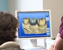 CEREC Same-Day Crowns | Westfiled MA
