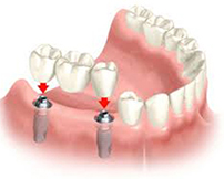 Dental Implants | Westfiled MA